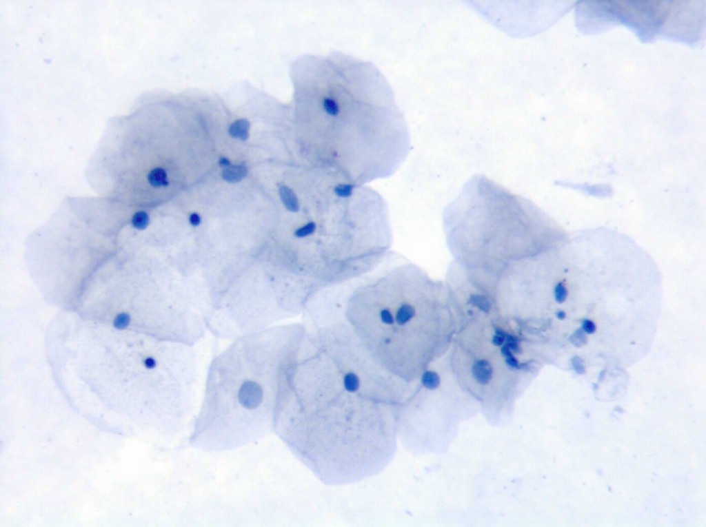 Normal specimen: A group of cervico-vaginal epithelial cells without ...